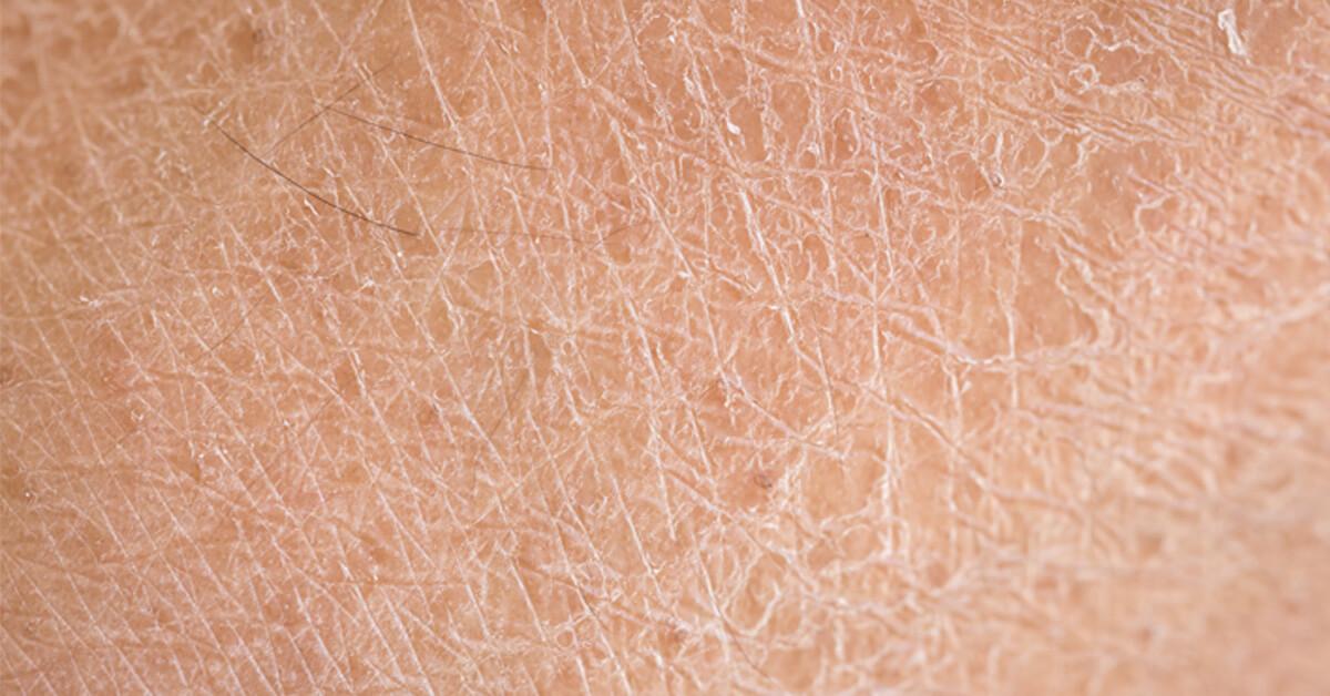 Selain Kulit, Lichen Planus Bisa Serang 4 Anggota Tubuh Ini