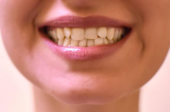 Susunan Gigi Tidak Rapi, Benarkah Pengaruh Faktor Genetik?