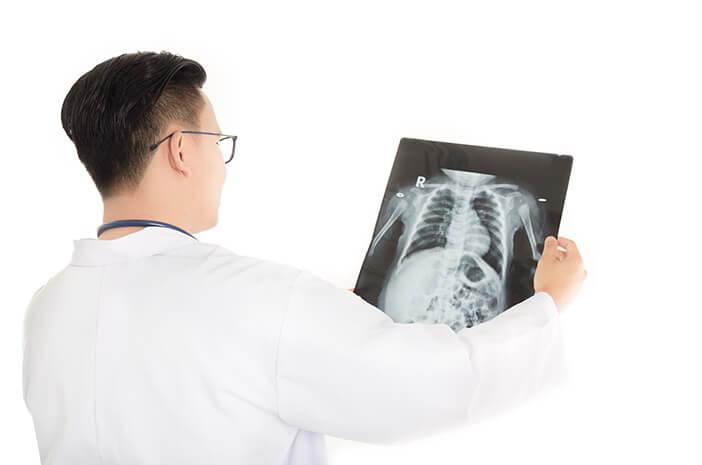 Terdengar Mirip, Ini Bedanya Osteopetrosis dan Osteoporosis