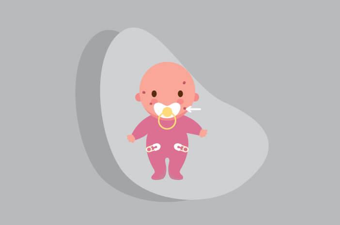 Ternyata, Ini Penyebab Kutil Muncul di Kulit Bayi