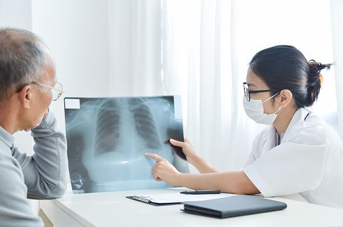 Tindakan Medis yang Dilakukan untuk Atasi Kanker Paru
