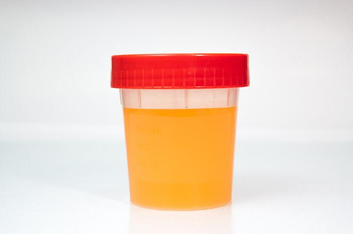 Urine Berwarna Kuning Saat Puasa, Tanda Kurang Minum?