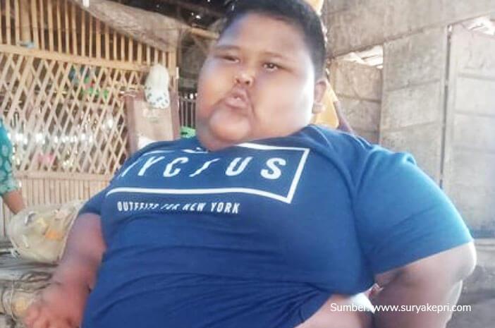 Viral Anak Obesitas Meninggal Karena Asma, Ini Penjelasan Medisnya