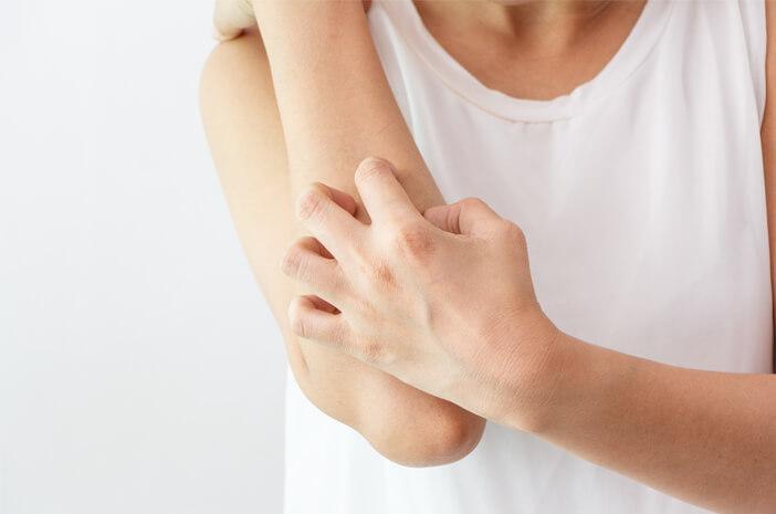 Waspadai 2 Komplikasi yang Menyebabkan Granuloma Annulare