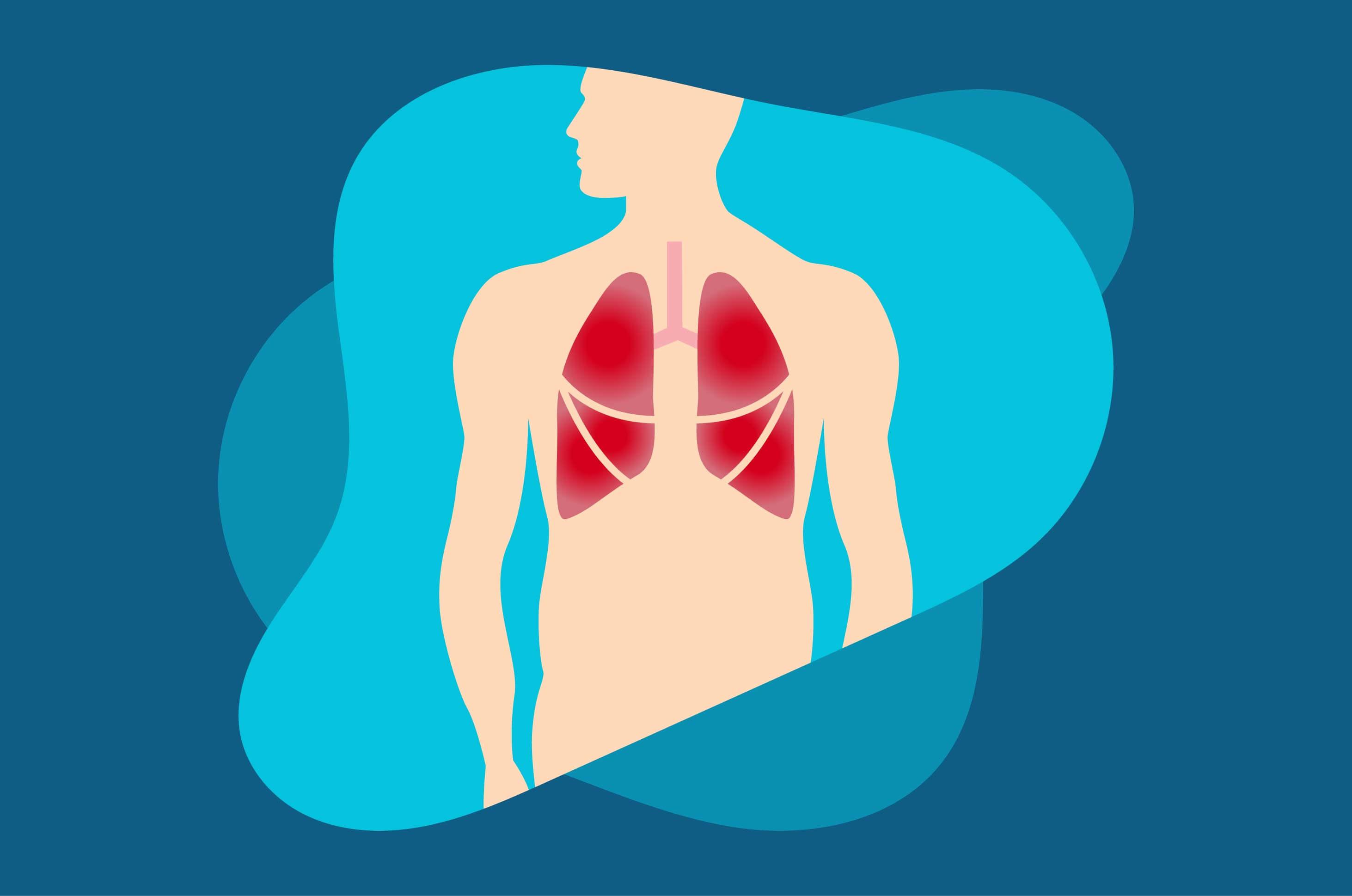 waspadai-6-komplikasi-yang-diakibatkan-pneumonia-halodoc
