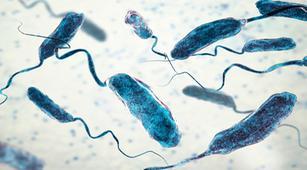 Waspada, Ini Komplikasi yang Dapat Terjadi karena Kolera