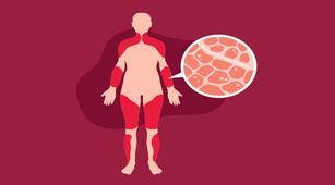 Kondisi Seperti Apa yang Dapat Sebabkan Myositis?