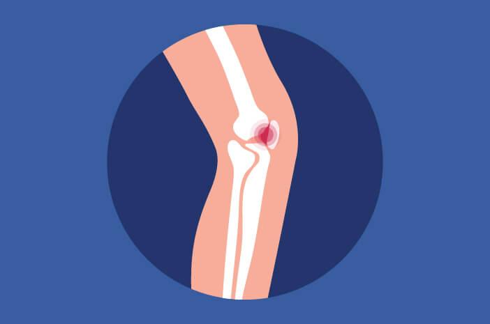 Patellofemoral Pain Syndrome, perubahan tulang kecil, sakit sendi