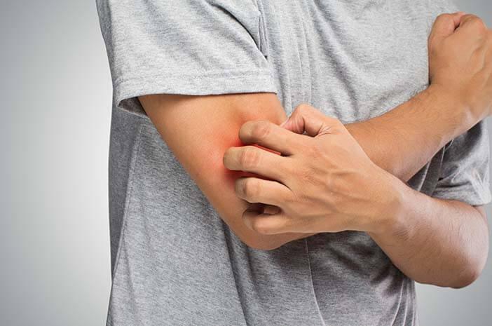 5 Bahan Alami Ini Bisa Jadi Obat Gatal pada Kulit