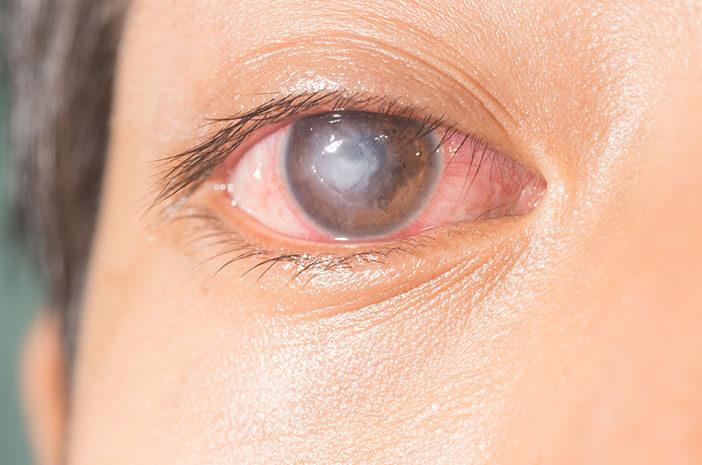 cara membersihkan lensa kontak, cegah ulkus kornea