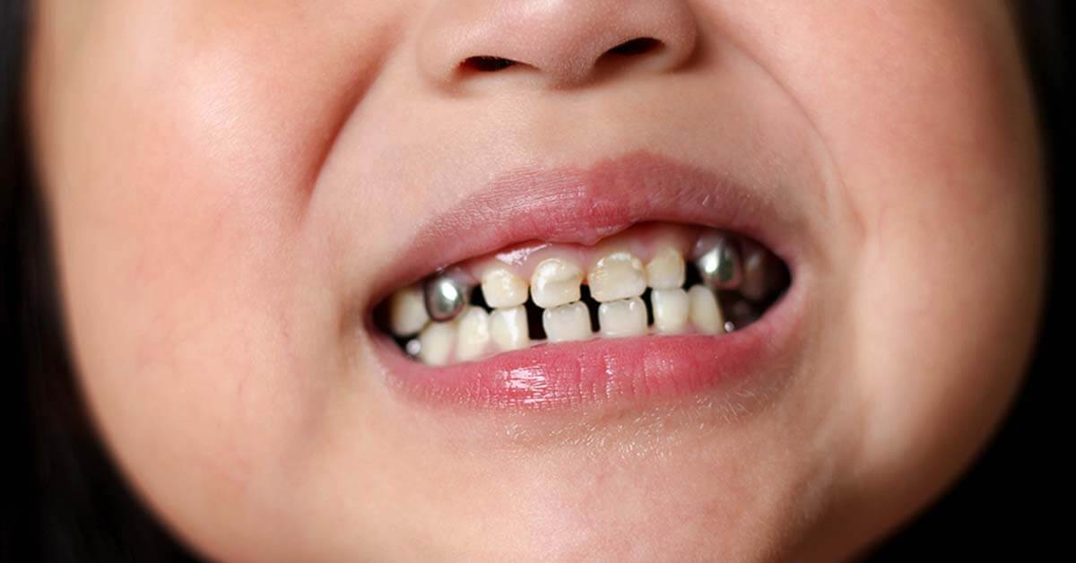 Bau Mulut , anak bau mulut