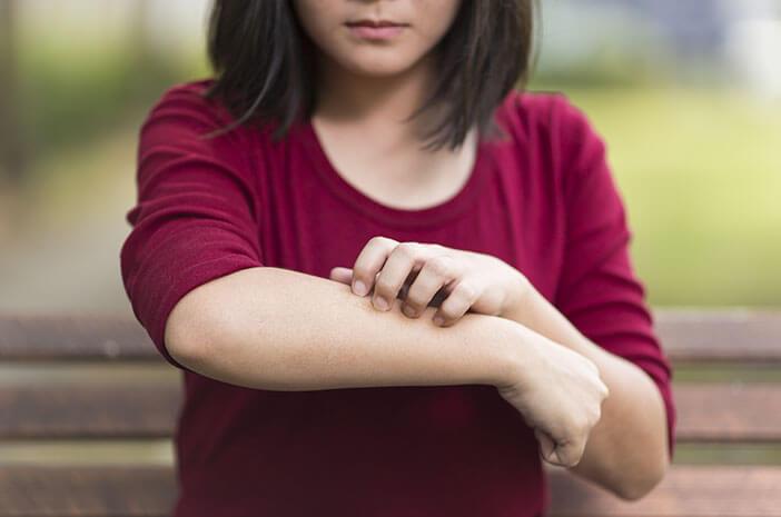 6 Faktor yang Tingkatkan Risiko Dermatitis Herpetiformis