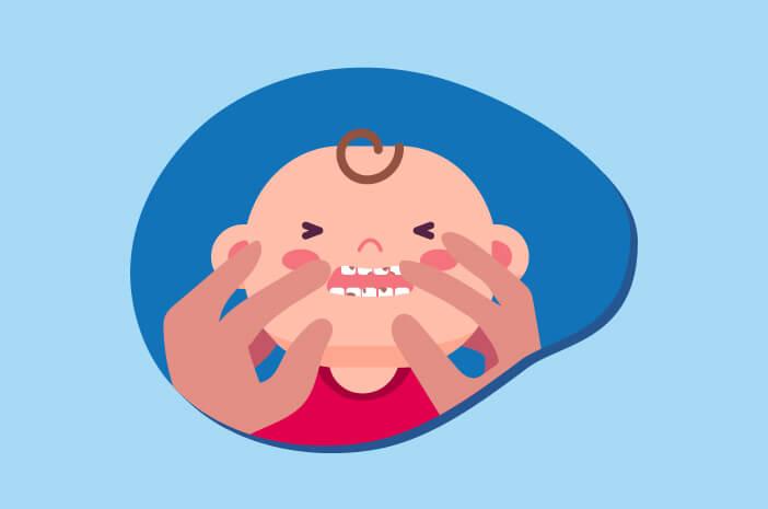4 Gejala dari Baby Bottle Tooth Decay