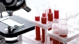 3 Jenis Kelainan Darah yang Mempengaruhi Pembekuan Darah