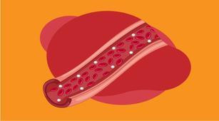 5 Makanan yang Baik untuk Mencegah Arteriosklerosis