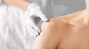 2 Pemeriksaan untuk Deteksi Dermatitis Numularis