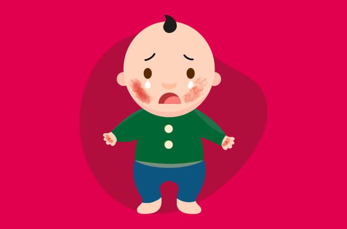 dermatitis atopik, eksim atopik, eksim atopik pada anak