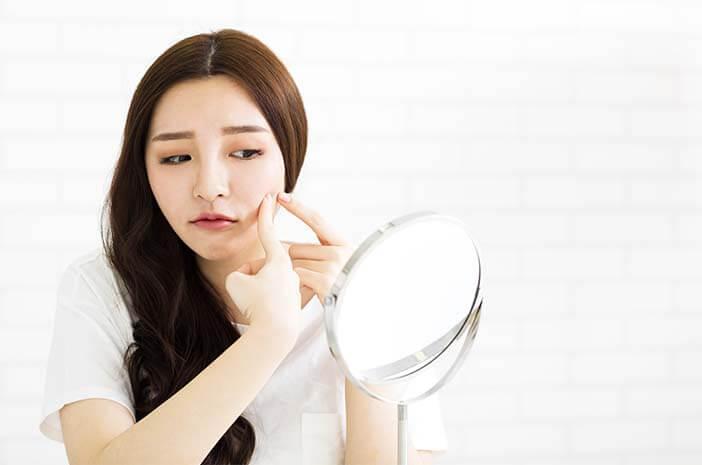 3 Perawatan Kulit untuk Wajah Berminyak dan Berjerawat
