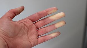 3 Tes untuk Diagnosis Fenomena Raynaud
