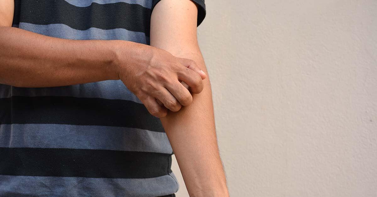 8 Faktor Ini Meningkatkan Risiko Hidradenitis Suppurativa