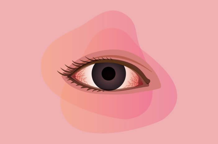 konjungtivitis, lensa kontak dapat, pink eye